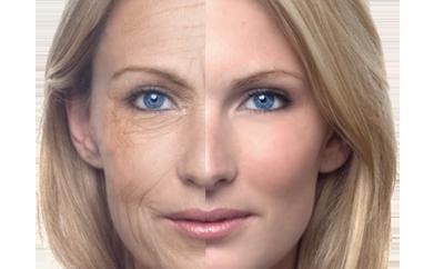 Tratamiento Anti Aging (antiedad)